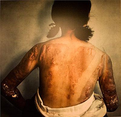 Atom bombasının oluşturduğu yanıklarda keloid gelişmesi. Keloid, yara iyileşirken aşırı bağ dokusu oluşması ve resimde görüldüğü gibi derinin iyice kalınlaşması, esnekliğini kaybetmesi ile kendini gösteriyor. Eklemlerde hareketi engelliyor ve ağrılı olabiliyor.