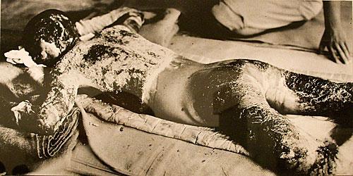 Bombanın ısı etkisi ile oluşan yanıklar.