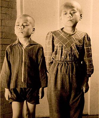 """Bu iki kardeşin bomba atıldıktan sonra saçları dökülmüş. Bombanın radyasyon etkilerine maruz kalan kişilerde iki-üç hafta sonra ateş, damaklarda kanama, saç dökülmesi gibi belirtilerle görülen """"radyasyon hastalığı"""" denilen durum ortaya çıkıyor ve öldürücü olabiliyor."""